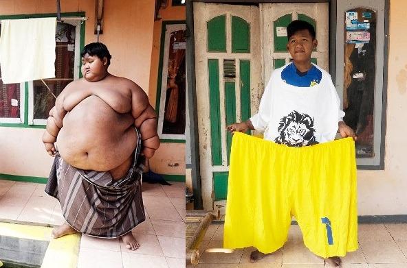 خسر من 115 كغ  من وزنه .. أثقل طفل في العالم يستعيد رشاقته